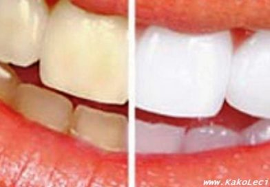 KakoLeciti_zdravi zubi