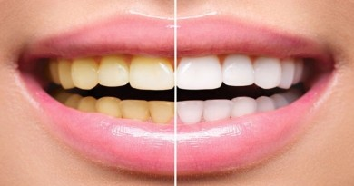 Savjeti i lijekovi za zdrave zube